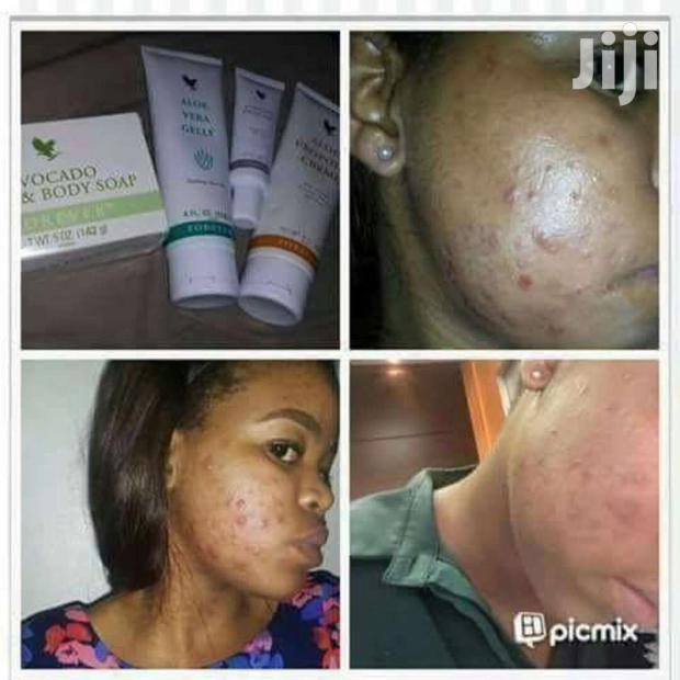 Pimples Package