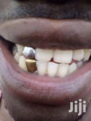 Gold And Silver Slugs. (Stylish Teeth) | Watches for sale in Greater Accra, East Legon