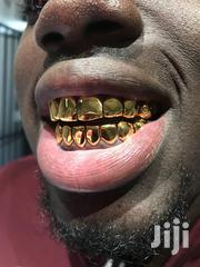 Gold Grillz Gold Teeth | Jewelry for sale in Greater Accra, Cantonments