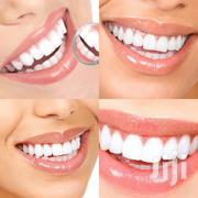 Dentist Services | Health & Beauty Services for sale in Greater Accra, East Legon