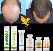 Hair Loss Products | Hair Beauty for sale in Ashanti, Kumasi Metropolitan