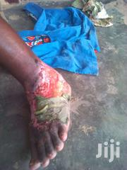 Heal Wounds And Fractures | Automotive Services for sale in Eastern Region, Suhum/Kraboa/Coaltar