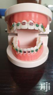 Teeth Braces | Tools & Accessories for sale in Greater Accra, Dansoman