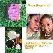 Face Repair Kit(Acne, Sunburn,Pimples) | Skin Care for sale in Greater Accra, Teshie-Nungua Estates
