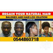 Bald Hair/Hair Loss Product | Hair Beauty for sale in Greater Accra, Airport Residential Area