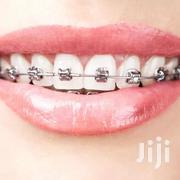 Teeth Brace | Tools & Accessories for sale in Greater Accra, Dansoman