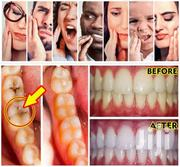 Dental Problem Natural Solution | Makeup for sale in Greater Accra, Ashaiman Municipal