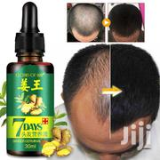 A Real Antidote To Baldness & Hair Loss Within A Week | Hair Beauty for sale in Eastern Region, Suhum/Kraboa/Coaltar