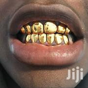 Teeth Grillz | Jewelry for sale in Greater Accra, East Legon