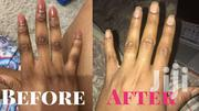 Dark Knuckles Treatment | Makeup for sale in Greater Accra, East Legon