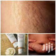 Stretch Marks Product. | Skin Care for sale in Greater Accra, Airport Residential Area