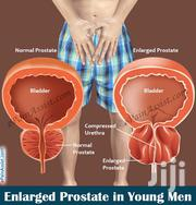 Natural Remedy To Reverse An Enlarged Prostate | Vitamins & Supplements for sale in Ashanti, Kumasi Metropolitan