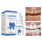 Lanbena Teeth Whitening Essence | Tools & Accessories for sale in Greater Accra, Dansoman