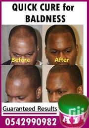 All In One (A1) Hair Loss Treatment | Hair Beauty for sale in Greater Accra, Achimota