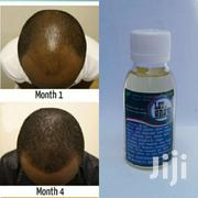 Bald Treatment Oil | Makeup for sale in Greater Accra, Kwashieman